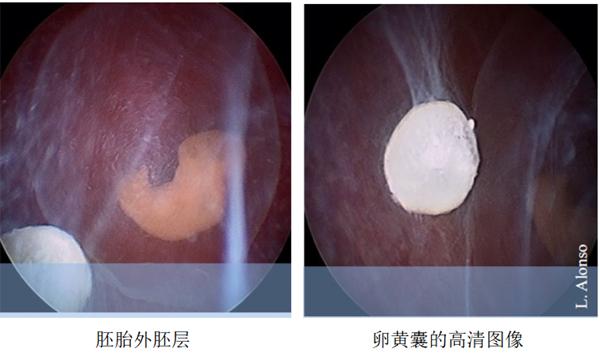 宫胚胎外胚层